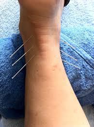발목을 삐끗? 그냥 넘어가지 마세요- 발목염좌 치료, 예방법